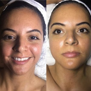 mobile-spa-losangeles-microchanneling--facials-dermabrasion-acne-before-after-photos-