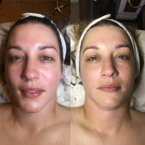 mobile-spa-losangeles-beforeandafter-microchanneling--facials-dermabrasion-acne-before-after-photos-