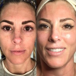 microchanneling-before-after-
